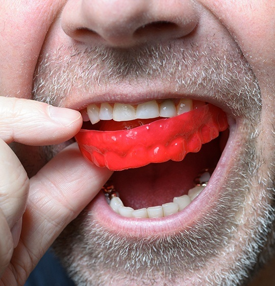 Man placing an athletic mouthguard