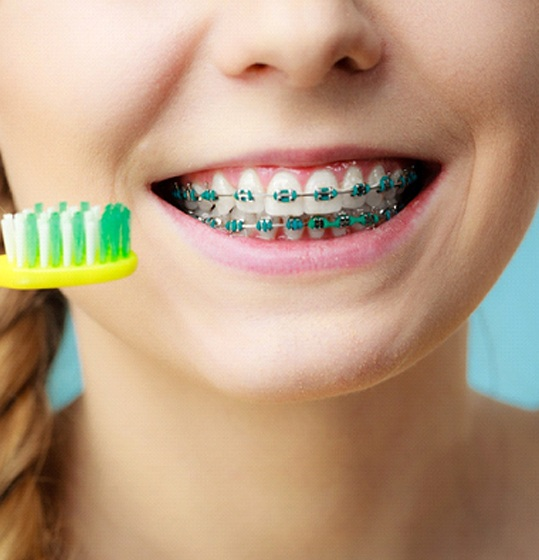 young girl's smile with braces and yellow toothbrush