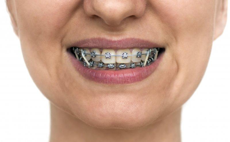 person wearing braces in Denison